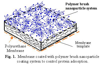 Membrane coated with polymer brush nanoparticle coating system to control protein adsorption